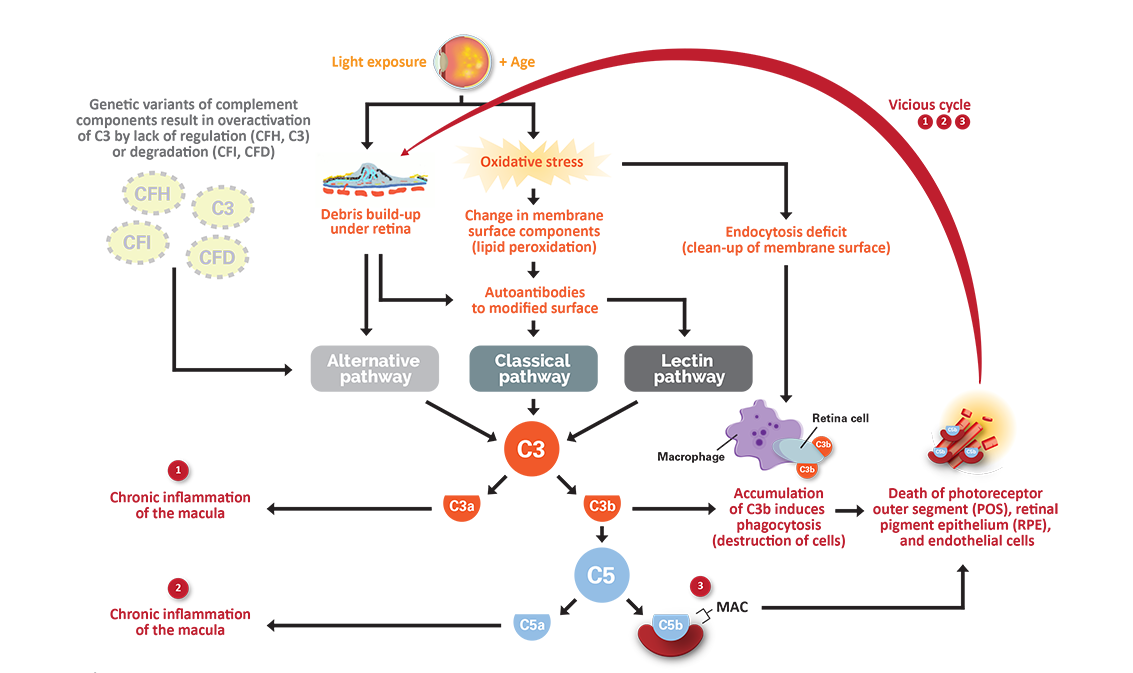 Diagram of how a dysregulated complement system can lead to chronic inflammation in the macula